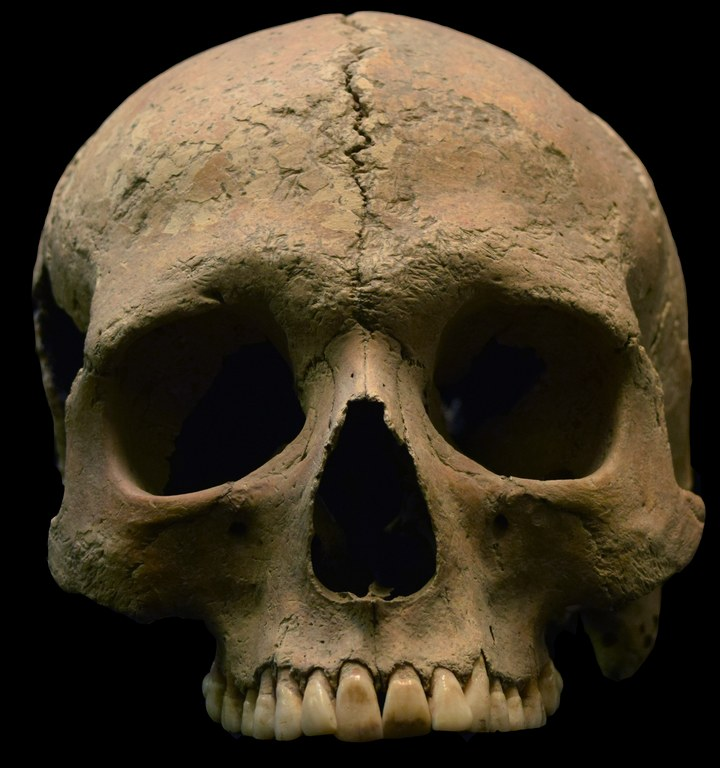 Frontal view of the above skull. This skull of an adult male (approx. 20-25 years in age), was recovered from the Velia Necropolis (1st-2nd c. C.E). Image credit: Luigi Pigorini National Museum of Prehistory and Ethnography in Rome